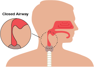 closed airway sleep apnea