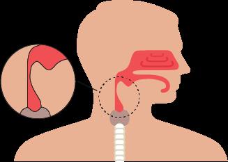 closed airway sleep apnea